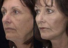Face Massaging Yoga Versus Doing Zilch: Do Facial Aerobics Work? #SkinLighteningMen