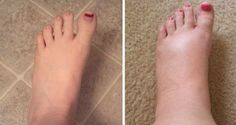 Improve Poor Circulation: Make a Natural Gel For Swollen Feet