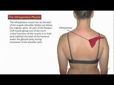 t is important for the therapist to check for and address any trigger point activity in the supraspinatus and deltoid muscles after treatment of the infraspinatus trigger points. Deltoid trigger points are likely to form in response to the referred pain from infraspinatus trigger points, and supraspinatus trigger points are nearly always coconspirators in rotator cuff issues.