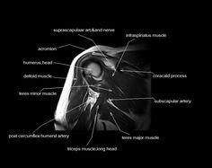 MRI shoulder anatomy | shoulder coronal anatomy | free cross sectional anatomy |