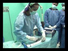 Protocolo Quirúrgico 4. Preparación de la Mesa de Mayo.flv