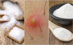 5 Home Remedies to Treat Ingrown Hairs Treat Ingrown Hair, Ingrown Leg Hair, Infected Ingrown Hair, Ingrown Hair Serum, Ingrown Hair Removal, Ingrown Hairs, Skin Care Tips, Skin Care Regimen, Hair Scrub