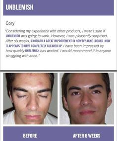 Consistency, over time, equals results! Believe in the process...Miracles don't work over night but progress DOES happen over time :) Give it 60 days and if you don't see results you can return your empty bottles for a FULL refund! Check out some of these amazing before and after shots of people using R+F products!   https://kkumar.myrandf.com/ #acnescarsbeforeandafter