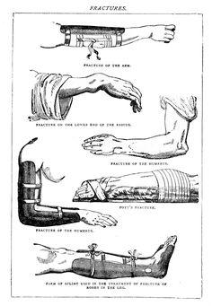 Vintage Clip Art – Odd Medical – Fractures