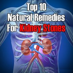 Top 10 Natural Remedies For Kidney Stones | Holistic Health Journal
