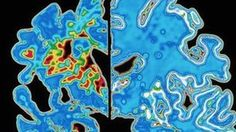 #Alzheimer's early signs timeline developed  #Health #BBC