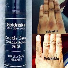 #VaselineBeautyTips Oily Skin Care, Skin Care Tips, Skin Tips, Be Natural, Natural Skin Care, Natural Beauty, Dark Knuckles, Skin Care Routine For 20s, Skincare Routine