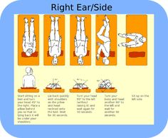 Epley Maneuver for treatment of vertigo  Right Sided BPPV Treatment