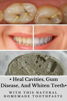 Heal Cavities, Gum Disease, And Whiten Teeth With This Natural Homemade Toothpaste…