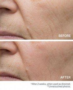 Pin On Skincare Dena