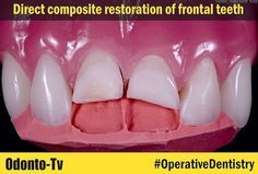 OPERATIVE DENTISTRY: Direct composite restoration of frontal teeth | Odonto-Tv