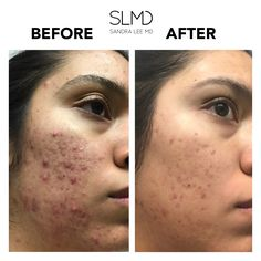 24 Best Before After Images Acne Prone Skin