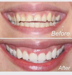 nyc cosmetic dentist - Another! Dentist Nyc, Teeth Dentist, Nyc Cosmetics, Dental Cosmetics, Teeth Implants, Dental Implants, Celebrity Dentist, Teeth Whitening That Works, Emergency Dentist