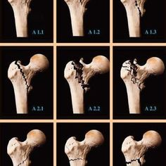 AO Classification of intertrochanteric fractures of femur. A1. Simple (2-fragment) pertrochanteric area fractures: A1.1 Fractures along the intertrochanteric line; A1.2 Fractures through the...
