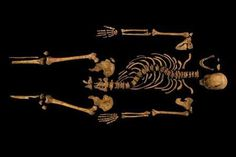 Archaeologists have uncovered Richard III's long-missing corpse, buried beneath a parking lot 20 miles from the battle that killed him. A comparison of the DNA in the bones to those of his living relatives appears to confirm it. The curve in his spine, likely from scoliosis, is a fascinating story in itself. Our centuries-old portrayal of King Richard III, the hunchback king, the mental image you probably have of him, turns out to be him.