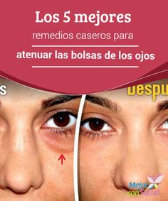 Los 5 mejores remedios caseros para atenuar las bolsas de los ojos  La piel del contorno de los ojos constituye una de las zonas más frágiles del rostro debido a la escasez de glándulas sebáceas.