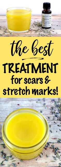 Best Scar and Stretch Mark Treatment You Can Make at Home! Make this recipe for the best scar and stretch mark treatment at home with this homemade salve recipe that helps to fade dark spots and promote cellular turnover for healthy looking skin. It's anti-aging properties also make it great for smoothing wrinkles! #scarremoval #stretchmarks #naturalalternative #skincare #beauty #diy #salverecipe #scars via @soapdeligirl