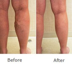 Curat forum picioare varicose crema