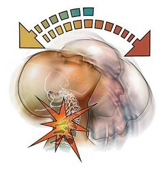 Whiplash can occur at even low speeds causing soft tissue damage, which can be source of headaches