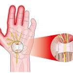 The is a narrow passageway bounded by carpal bones (wrist bones). Carpel Tunnel Syndrome, Median Nerve, Carpal Tunnel, Pain Management, Arthritis, Pain Relief, Clinic, Bones, Dice