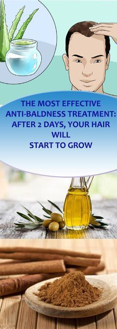 THE MOST EFFECTIVE ANTI-BALDNESS TREATMENT: AFTER 2 DAYS, YOUR HAIR WILL START TO GROW