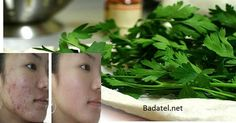 Skin tips dark spots Get Rid of Sun Allergies, Dark Spots, Acne and Wrinkles With The Leaves of This Plant! - http:get-rid-of-sun-allergies-dark-spots-acne-and-wrinkles-with-the-leaves-of-this-plant Anti Pickel Creme, Sun Allergy, Acne Dark Spots, Les Rides, Hormonal Acne, Pores, How To Get Rid Of Acne, Acne Remedies, Tips Belleza