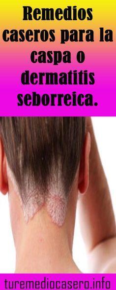 Dermatitis seborreica en cabello