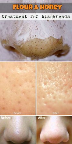 Flour and honey treatment for #blackheads http://www.healyourfacewithfood.com/