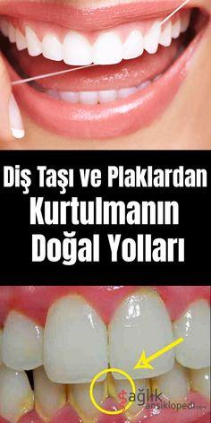 Diş Taşı ve PlaklardanKurtulmanın Doğal Yolları