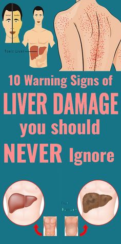 10 Warning Signals of Liver Damage You Should Not Ignore - The Health Resolution Wellness Tips, Health And Wellness, Health Tips, Health Fitness, Women's Health, Health Eating, Health Recipes, Health Care, Eating Healthy