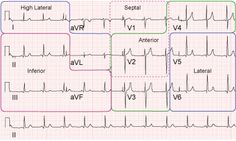 ekg lead placement  | Recreation of an ecg with coresponding regions of the heart ...