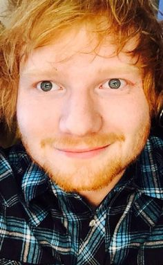 howtotrainyourginger: Those eyes.  I'd give up blinking to see that face more  gimme