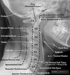 Cervical Spine Learn more about anatomy and how we work with the body in Yin Yoga Teacher Training. Radiology Student, Radiology Imaging, Medical Imaging, Radiology Schools, Brain Anatomy, Medical Anatomy, Human Anatomy And Physiology, Skull Anatomy, Nursing School Notes