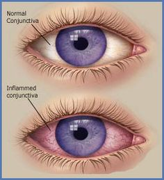 What Are Some of the Home Remedies for Pink Eye? Colostrum Keifir