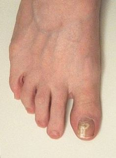 Healthy toenail growth appears after three weeks of treatment.