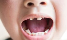 Children in England are missing 60,000 days of school each year because they are having teeth pulled.
