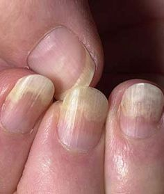 Brittle, Thin, or Lifted Nails
