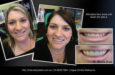 If you're looking for the best dentist Melbourne CBD? We offer General, Restorative and Cosmetic Dentistry Veneers Teeth, Dental Veneers, Composite Veneers, Snap On Smile, Dental Bonding, Cosmetic Dentistry Procedures, Smile Makeover, Melbourne Cbd, Best Dentist