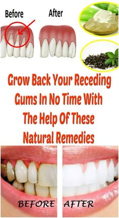 Grow Back Your Receding Gums In No Time With The Help Of These Natural Remedies Gingivitis, usually known as gum disease, is a dental issue characterized by symptoms like constant bad breath, red or swollen gums and very sensitive,