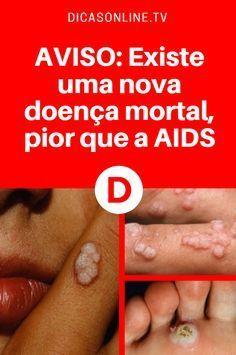 AVISO: Existe uma nova doença mortal, pior que a AIDS