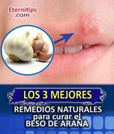 Remedios Naturales para Herpes Labial o Beso de Araña | Eternitips
