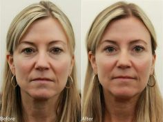 Eyelid surgery (technically called blepharoplasty) is a procedure to remove fat, excess skin, and muscle from the upper and lower eyelids. Eyelid surgery can correct drooping upper lids, and puffy bags below the eyes.