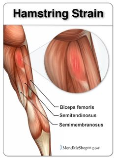 Hamstring strain or sprain, which is affected