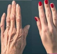 Itt a recept a kezed visszafiatalíítására! Többé nem árulja el a korodat! | blikkruzs.hu