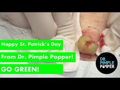 74 Best stuff images in 2019   Pimples, Channel, Dilated pores