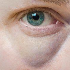 Blaue_Augenringe