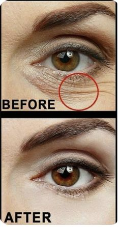 "Secret Beauty Tips To Get Rid Of Wrinkles, Dark Circles Crows Feet""alt=""Top Secret Beau""/></br></br>Top Secret Beauty Tips To Get Rid Of Wrinkles, Dark Circles Crows Feet</br> Under Eye Wrinkles, Prevent Wrinkles, Face Wrinkles, Under Eye Wrinkle Treatment, Beauty Skin, Health And Beauty, Beauty Makeup, How To Get Rid, Beauty Hacks"
