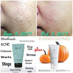 Wow used in combination with one another one to get rid of the acne and the other to smooth the skin it diminishes fine lines and pits from where you just got your skin clean from the mud mask tightens the skin and forms it back up Best Skincare Products, Beauty Products, Heat Rash, Prevent Ingrown Hairs, Natural Beauty Remedies, Nu Skin, Skin Care Remedies