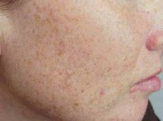 As we age, brown spots can appear on the skin. These are called age areas or liver spots. They appear like flat brownish-colored skin stainings, which can appear on the face and other areas of the body. Age Spots On Face, Spots On Legs, Brown Spots On Face, Dark Spots, Skin Care Regimen, Skin Care Tips, Age Spot Remedies, Natural Remedies, Age Spot Removal