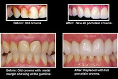 Most dentists will agree that it's better to save a tooth than extract it. But for teeth that are broken or heavily decayed, a tooth filling usually won't do. Porcelain Crowns, Restorative Dentistry, Dentists, Tooth, Dental, Ethnic Recipes, Teeth, Dentist Clinic